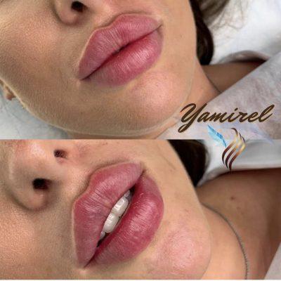 Aumento de labios en Valencia 4