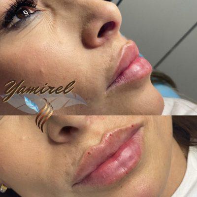 Aumento de labios en Valencia 2