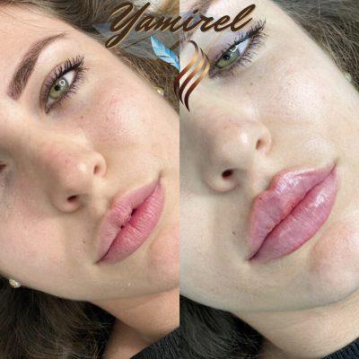 Aumento de labios en Valencia 1